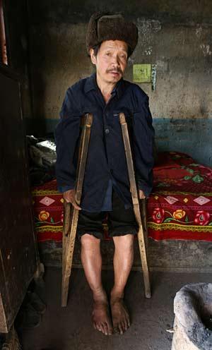 Zhang Huaixiang, granjero de Guizhou, sufre fluorosis esquelética (Fotos: AFP)