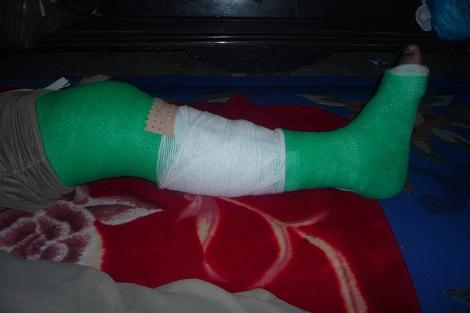 La pierna vendada de uno de los detenidos por Marruecos. | Ana Romero