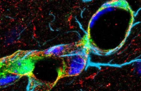 Imagen de las células involucradas en el estudio. | Christian Göritz