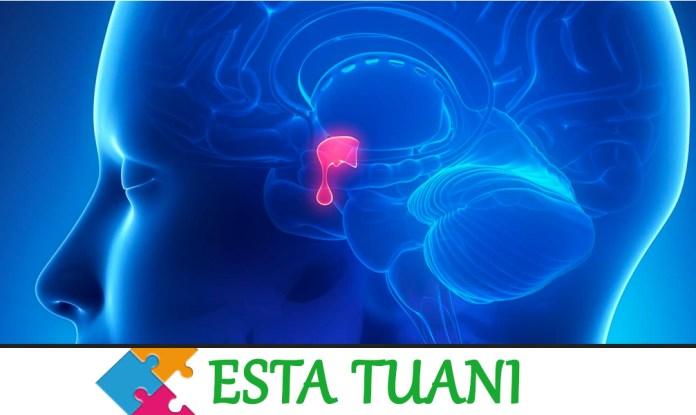 Pituitary tumor, tumor de hipofis, tumor hipofisario,