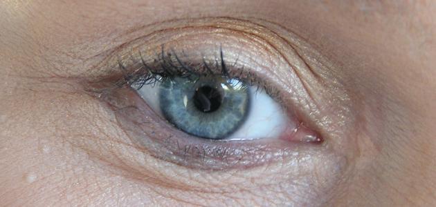 علاج كيس دهني في العين إستشاري