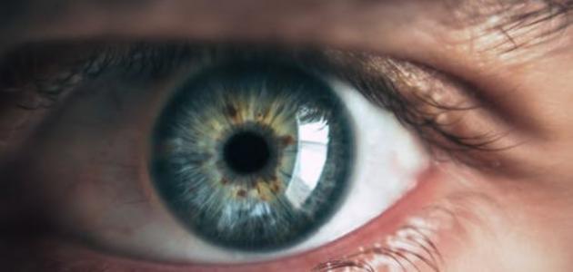 اسباب غباش العين إستشاري
