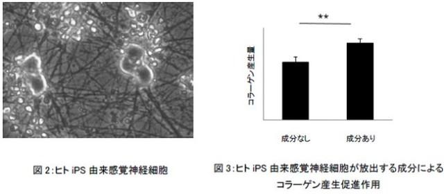 ヒトiPS由来感覚神経細胞とヒトiPS由来感覚神経細胞から放出された成分によるコラーゲン産生作用
