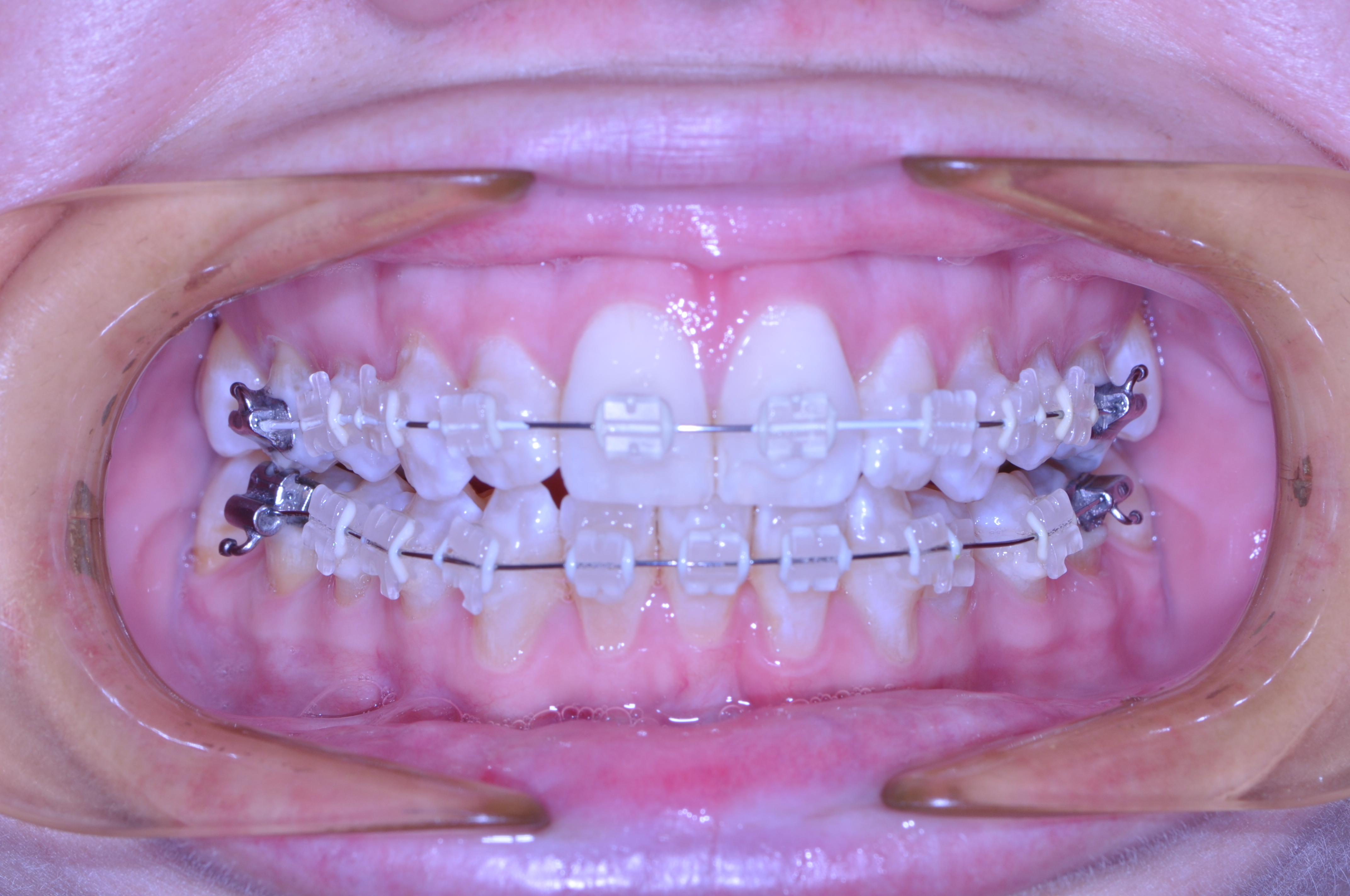 Im an adult why do i need braces esthetic dentistry dental group im an adult why do i need braces solutioingenieria Images