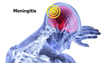 Meningitis: Tipos, formas de contagio y prevención, Meningitis: Tipos, formas de contagio y prevención