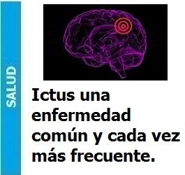 Ictus una enfermedad común y cada vez más frecuente., Ictus una enfermedad común y cada vez más frecuente.