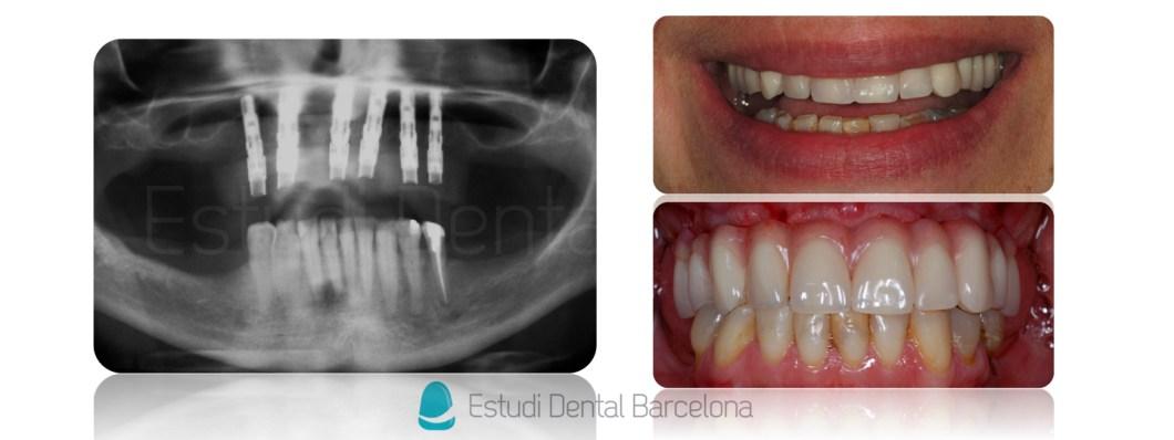 Implantes-Dentales-Prótesis-Híbrida-EDB