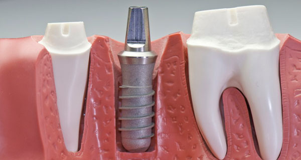 implantes_dentales_first