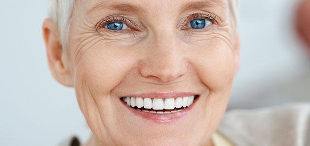 Sobredentaduras, una alternativa a las prótesis fijas sobre implantes