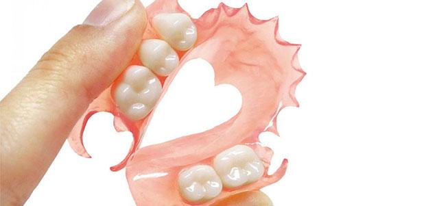 Tipos de prótesis dentales removibles