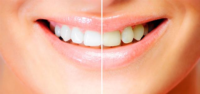 Carillas dentales. Tipos y materiales utilizados
