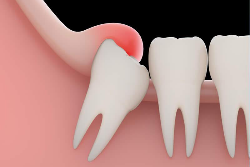 ortodoncia diente incluido Barcelona