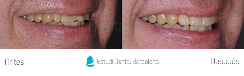 dientes-cortos-o-desgastados-caso-clinico-carillas-derecha