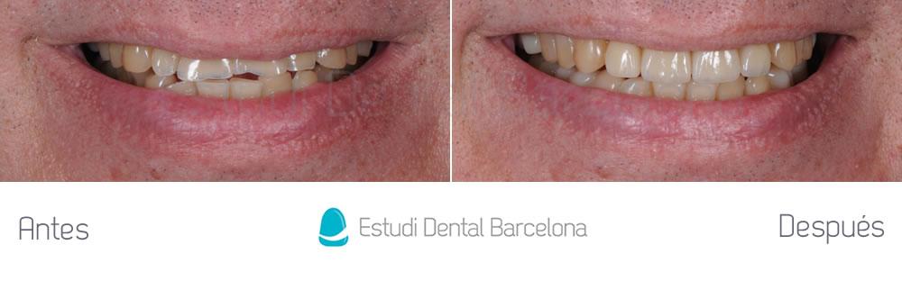 dientes-cortos-o-desgastados-caso-clinico-carillas-frente