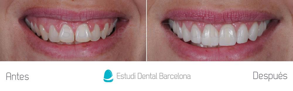 dientes-detras-de-otros-caso-clinico-carillas-dentales