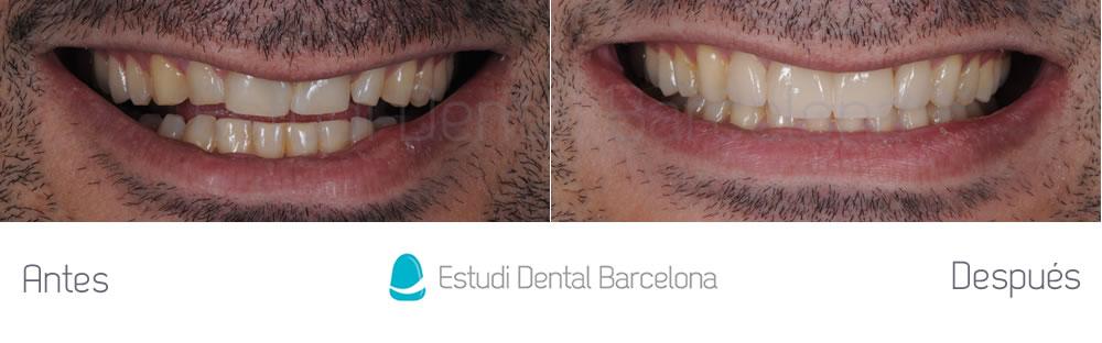 dientes-rotos-caso-clinico-carillas-de-porcelana-frente