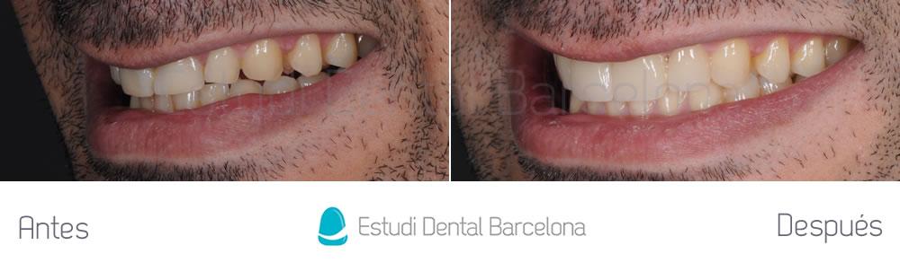 dientes-rotos-caso-clinico-carillas-de-porcelana-izquierdajpg