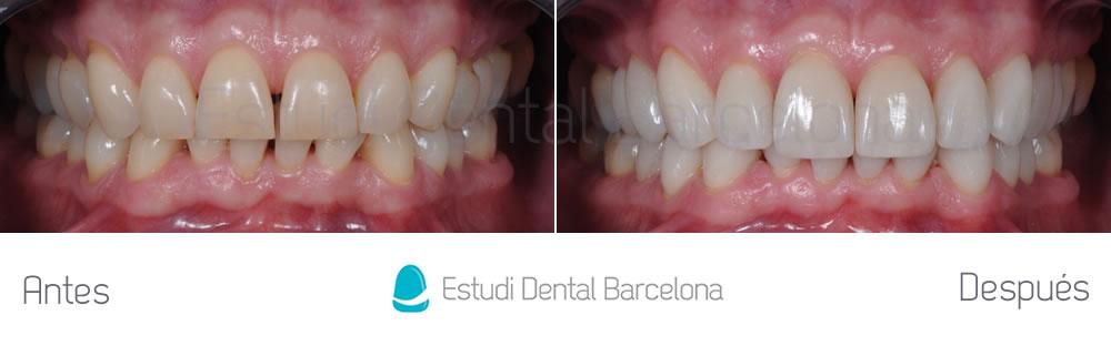 rejuvenecimiento-dental-con-carillas-sin-tallado-caso-clinico-apretando