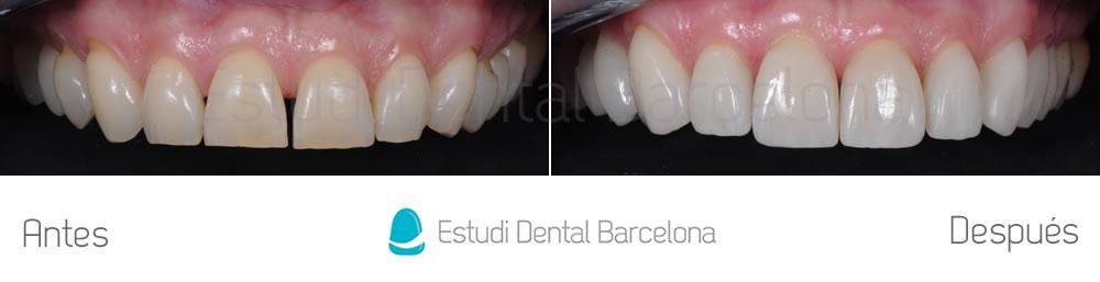 rejuvenecimiento-dental-con-carillas-sin-tallado-caso-clinico-arcada-superior