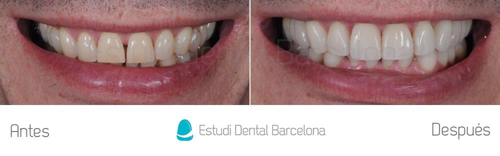 rejuvenecimiento-dental-con-carillas-sin-tallado-caso-clinico-frente1