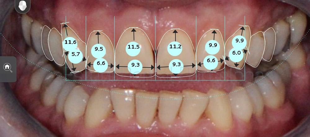 rejuvenecimiento-dental-con-carillas-sin-tallado-caso-clinico-proporciones