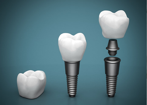 Implantes dentales: Duran toda la vida?