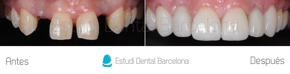 agenesia-de-laterales-y-carillas-de-porcelana-con-implantes-dentales-antes-y-despues-arcada-superior