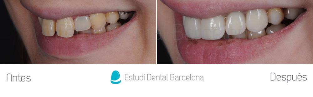 agenesia-de-laterales-y-carillas-de-porcelana-con-implantes-dentales-antes-y-despues-izquierda
