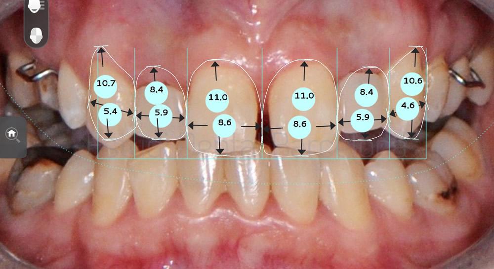 agenesia-de-laterales-y-carillas-de-porcelana-con-implantes-dentales-antes-y-despues-proporciones