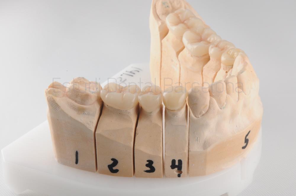 bruxismo-y-desgaste-severo-modelo-dientes