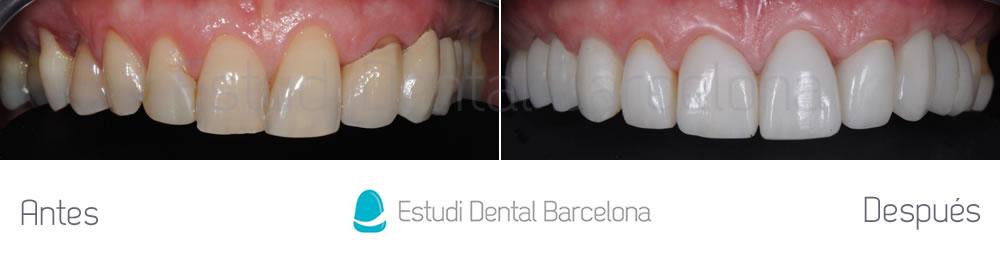 coronas-viejas-y-malposicion-dental-antes-y-despues-arcada-superior