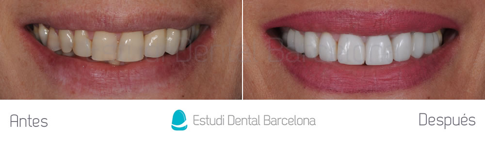 coronas-viejas-y-malposicion-dental-antes-y-despues-frente-sonriendo