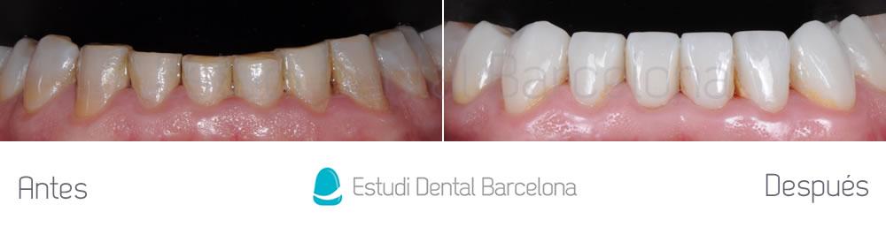 desgaste-dental-y-encias-retraidas-antes-y-despues-carillas-dentales-arcada-inferior