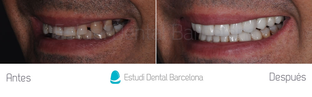 desgaste-dental-y-encias-retraidas-antes-y-despues-carillas-dentales-izquierda