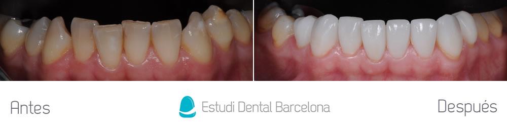 dientes-amarillos-y-desgastados-antes-y-despues-carillas-arcada-inferior