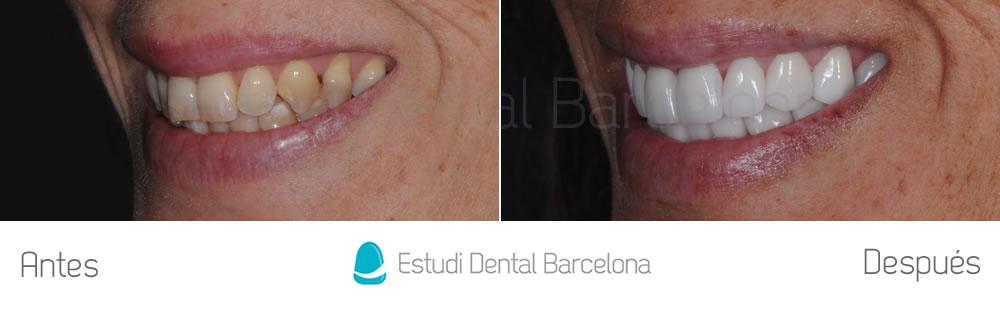 dientes-amarillos-y-desgastados-antes-y-despues-carillas-izquierda