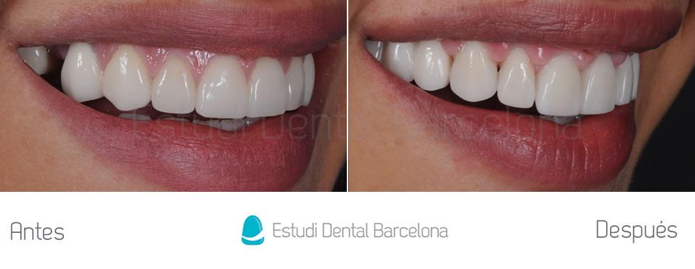 dientes-cortos-y-ausencia-dental-caso-clinico-derecha