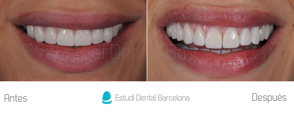 dientes-cortos-y-ausencia-dental-caso-clinico-frente