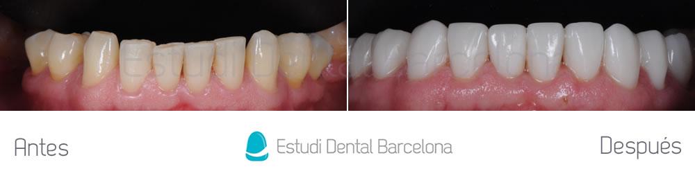 dientes-desgastados-y-diastema-antes-y-despues-carillas-dentales-arcada-inferior