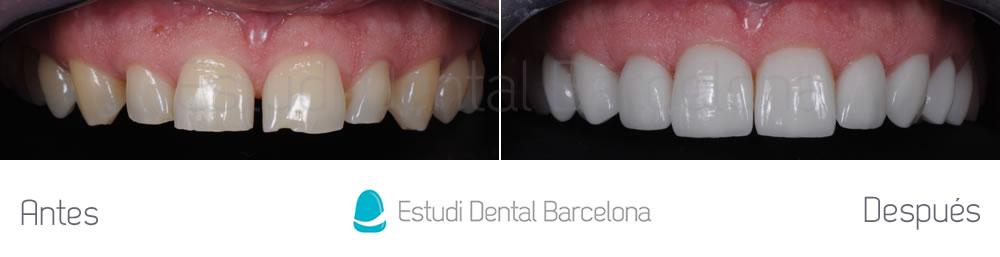 dientes-desgastados-y-diastema-antes-y-despues-carillas-dentales-arcada-superior