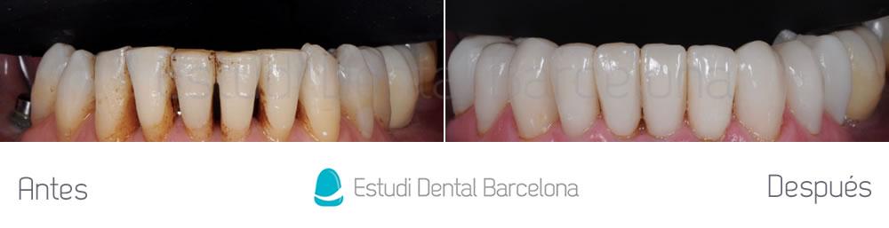 dientes-desgastados-y-manchas-antes-y-despues-carillas-dentales-arcada-inferior