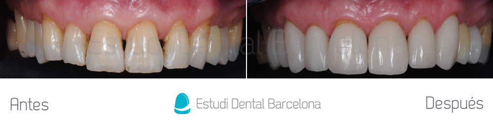 dientes-desgastados-y-manchas-antes-y-despues-carillas-dentales-arcada-superior