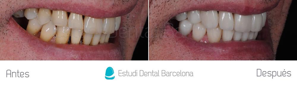 dientes-desgastados-y-manchas-antes-y-despues-carillas-dentales-dercha