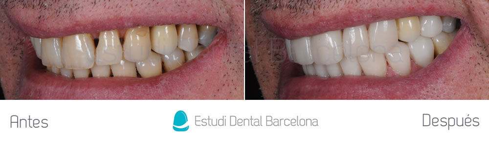dientes-desgastados-y-manchas-antes-y-despues-carillas-dentales-izquierda