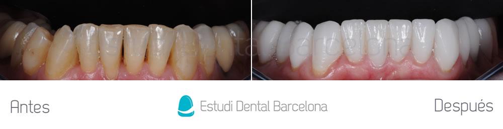 dientes-envejecidos-caso-clinico-carillas-de-porcelana-arcada-inferior