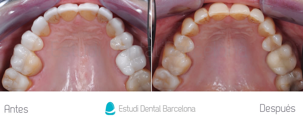 dientes-envejecidos-caso-clinico-carillas-de-porcelana-interior-superior1