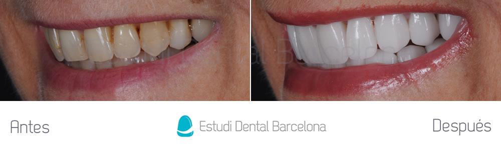 dientes-envejecidos-caso-clinico-carillas-de-porcelana-izquierda