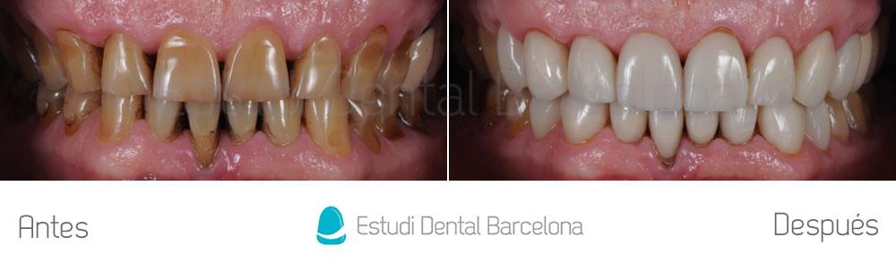 dientes-manchados-caso-clinico-carillas-dentales-apretando