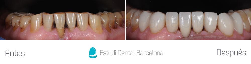 dientes-manchados-caso-clinico-carillas-dentales-arcada-inferior