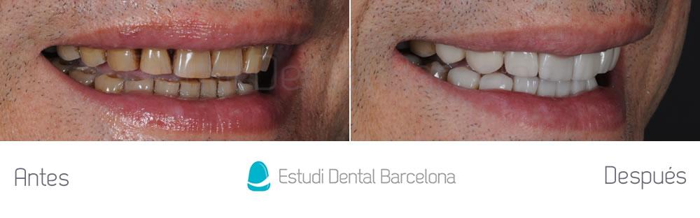 dientes-manchados-caso-clinico-carillas-dentales-derecha